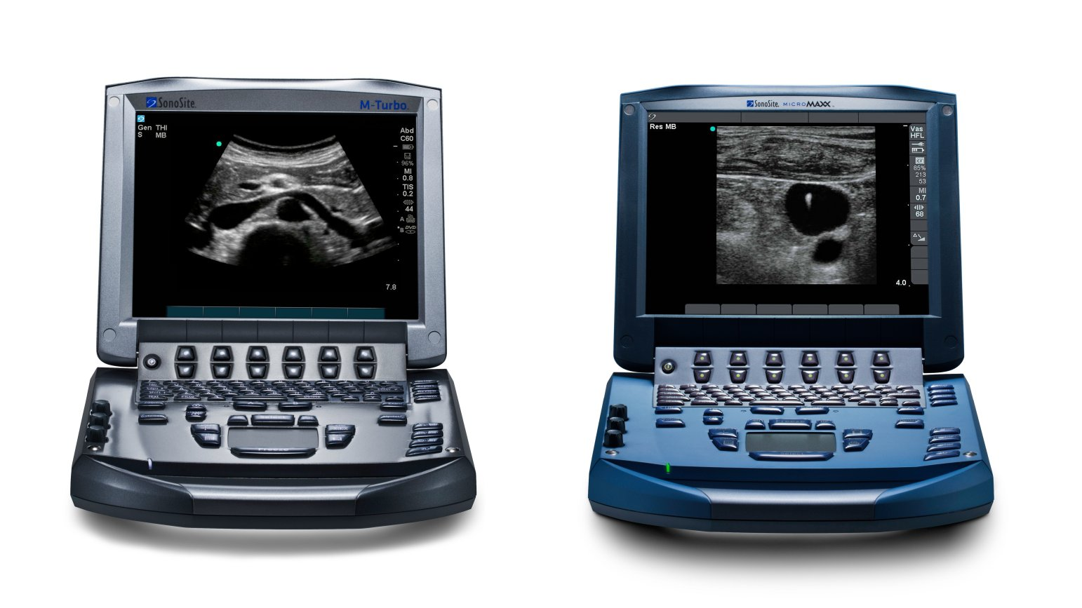 Micromaxx and M-Turbo Ultrasound Machines